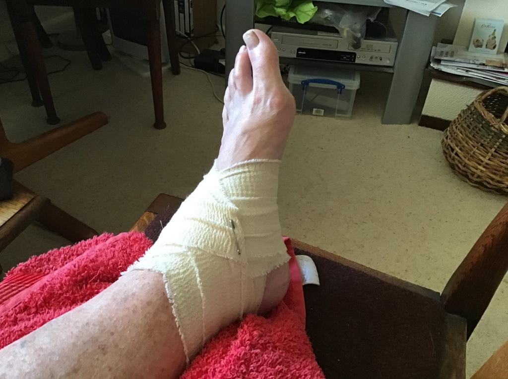 Mam's bandaged foot